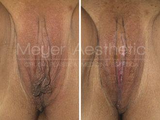 Labioplastia - 629710