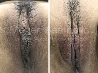 Labioplastia - 629712