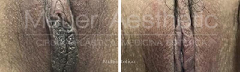 Meyer Aesthetic