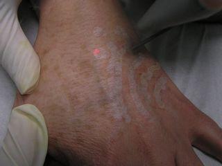 Clínica Dermatología Y Alergia