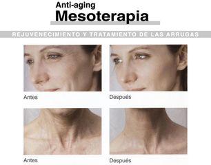 Antes y después mesoterapia