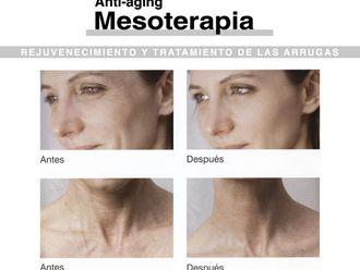 Mesoterapia - 279526