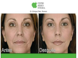 Rejuvenecimiento facial-628885