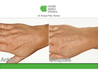 Tratamiento antimanchas-628888