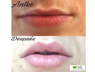 Aumento labios - 628889