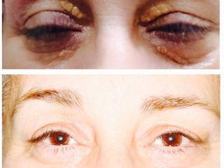 Antes y después tratamiento xantelasmas