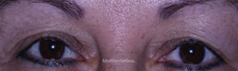 Blefaroplastia sin cirugía con sistema plexr.