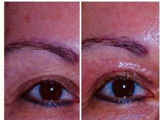 Antes y después Blefaroplastia sin cirugia