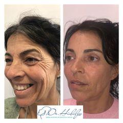 Blefaroplastia + relleno labio + botox