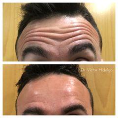 Botox varones