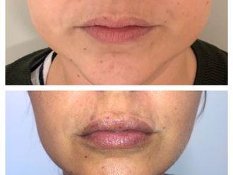 Aumento labios-686678