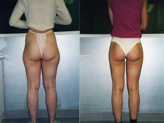 Lipoescultura piernas