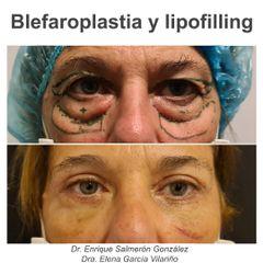Blefaroplastia - Dr. Enrique Salmerón González