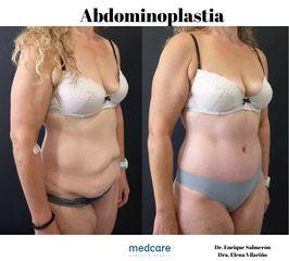 Abdominoplastia - Medcare