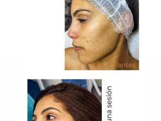 Tratamiento antiacné - 798134