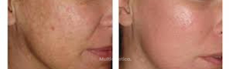 Láser antes y después