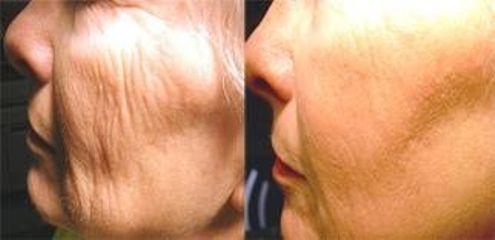 Láser para un rejuvenecimiento facial
