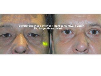 Blefaroplastia-428107
