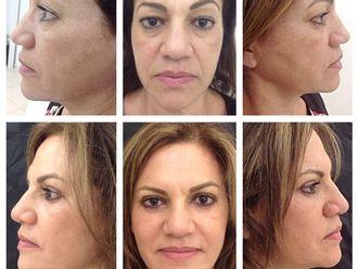 Rejuvenecimiento facial-515716