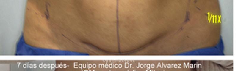 thermitight abdomen2.jpg