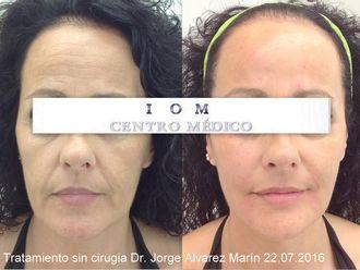 Medicina estética-589219
