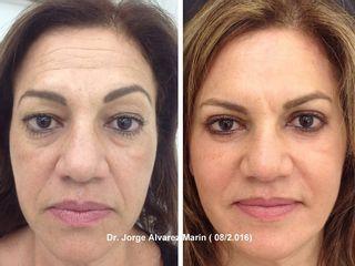 Rejuvenecimiento Facial paciente Dr. Alvarez