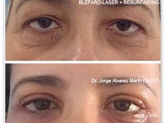 Blefaroplastia Laser Paciente Dr. Alvarez