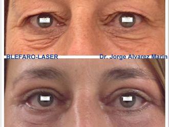 Cirugía estética-604873
