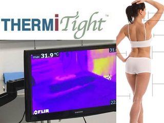 ThermiTIGHT remodelación corporal una sesión resultados hasta 6 años