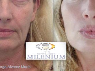 Rellenos faciales-663668