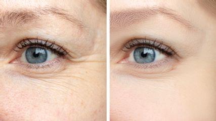 lifting ojos botox