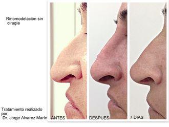 Medicina estética-663675