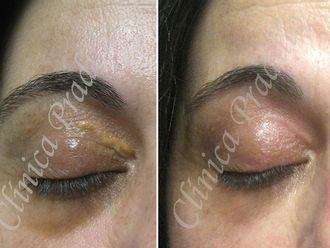 Dermatología-554048
