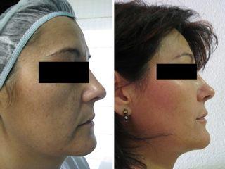 Antes y después laser anti manchas