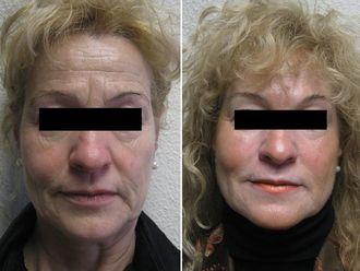 Rellenos faciales-556468