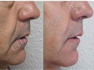 Antes y después acido hialurónico