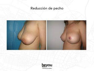 Reducción senos - 610342