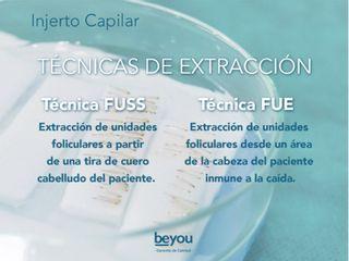 Técnicas de Extracción Capilar