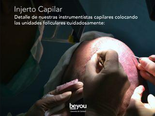 Cirugía Capilar