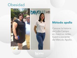 Tratamiento obesidad-621088