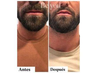 Aumento labios - 790133