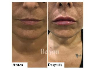Aumento labios - 790137