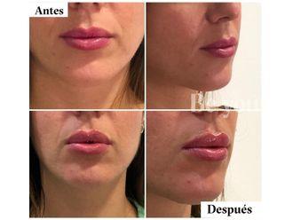 Aumento labios - 790142