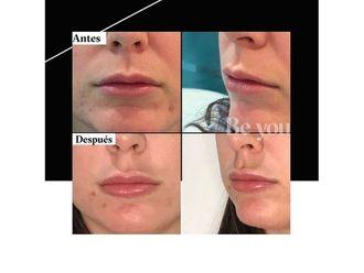 Aumento labios - 794445