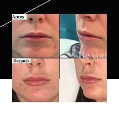 Aumento de labios - Be You Clínica