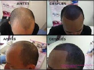 Alopecia-418901