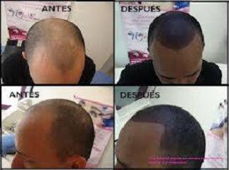 Antes y depués tratamiento alopécia