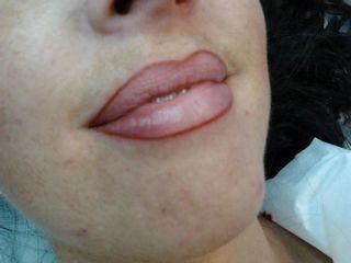 Resultado micropigmentación labios