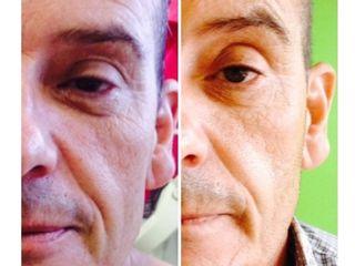 Antes y después Tratamiento Indiba