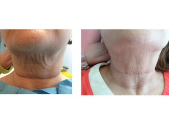 Carboxiterapia - 379989